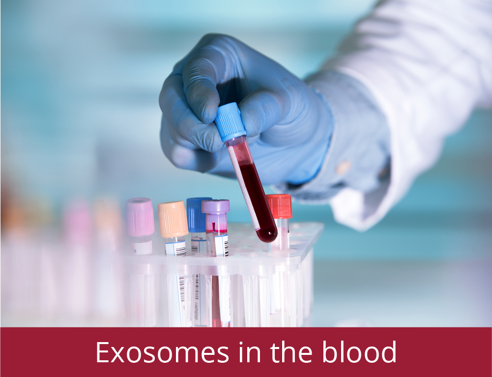 Exosomes in the blood - our Technology | Reliance Biosciences