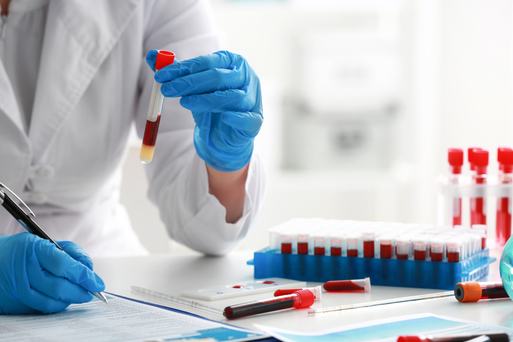 Diagnostics via exosome
